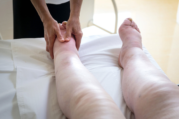 A person with edema in their legs and feet receiving a foot massage